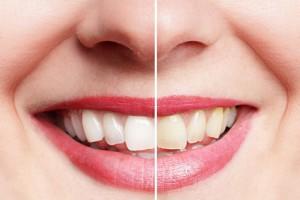 zu sehen ist ein mund mit hellen weißen zähnen und gelben verunreinigten dreckigen zähnen